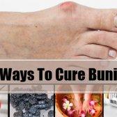 5 façons de guérir oignons