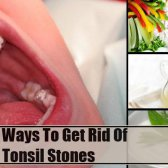 6 façons de se débarrasser des pierres d'amygdale
