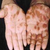 6 façons de traiter le pityriasis rosé naturellement