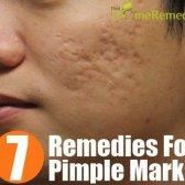 7 remèdes maison étonnants pour les marques Pimple