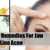7 meilleurs remèdes maison pour l'acné de ligne de la mâchoire