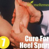 7 remède naturel pour épine calcanéenne