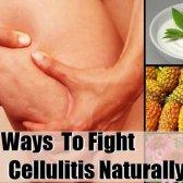 7 façons de lutter contre la cellulite naturellement