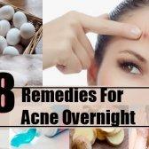 8 remèdes maison pour l'acné pendant la nuit