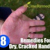 8 Accueil recours pour les mains sèches et craquelées