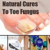 8 remèdes naturels pour mycose des pieds