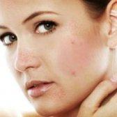 17 remède naturel pour l'acné