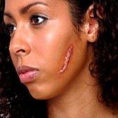 9 remèdes naturels pour les cicatrices glorieuses