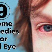 9 Accueil recours pour les yeux rouges