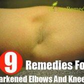 Les meilleurs remèdes maison pour les coudes et les genoux sombres