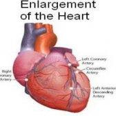 Les meilleurs remèdes naturels pour hypertrophie du coeur
