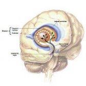 Postures de yoga curatif pour la maladie de Parkinson