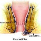 Remèdes efficaces à domicile pour les piles externes