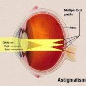 Remèdes naturels efficaces pour astigmatisme