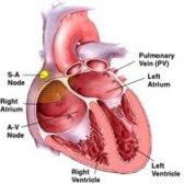 Remèdes naturels efficaces pour la fibrillation auriculaire
