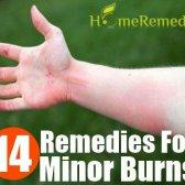 Accueil recours pour des brûlures mineures