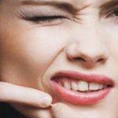 Comment guérir l'acné quelques excellents conseils