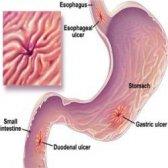 Comment guérir un ulcère