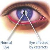 Comment prévenir les cataractes