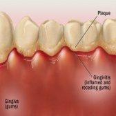 Comment prévenir la gingivite
