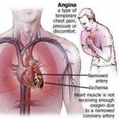 Comment traiter l'angine de poitrine en utilisant des vitamines