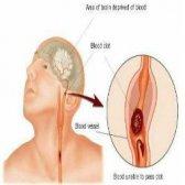 Comment traiter les caillots sanguins dans quelques moyens faciles