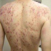 Comment traiter l'acné de corps