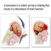 Comment traiter une commotion cérébrale