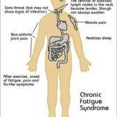 Remède naturel pour le syndrome de fatigue chronique