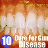 Remède naturel pour les maladies des gencives