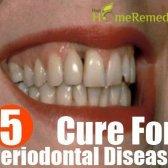 Remède naturel pour la maladie parodontale