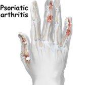 Remède naturel pour l'arthrite psoriasique