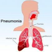 Remèdes puissants pour la pneumonie