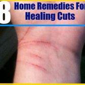 Les 8 meilleurs remèdes maison pour les coupes de guérison