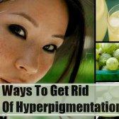 Top 11 des remèdes efficaces à domicile pour hyperpigmentation