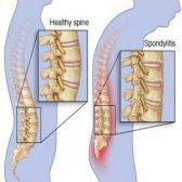Top 5 des remèdes de régime pour la spondylarthrite ankylosante