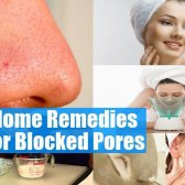 Top 5 des remèdes maison pour les pores obstrués