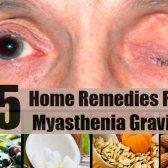 Top 5 des remèdes maison pour la myasthénie grave