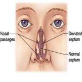 Top 5 des remèdes naturels pour déviation de la cloison