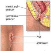 Top 6 des remèdes maison bénéfiques pour la fissure anale