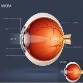 Top 6 des exercices oculaires pour la myopie