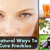 Top 6 des moyens naturels pour guérir les taches de rousseur