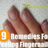 Top 9 des remèdes maison pour éplucher les ongles