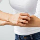 Remède naturel pour le psoriasis ayurveda