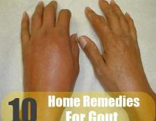 10 meilleurs remèdes maison pour la goutte