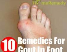 10 remèdes à la maison pour la goutte dans le pied