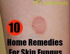 10 remèdes à la maison pour la mycose de la peau