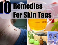 10 Accueil recours pour les balises de la peau