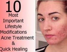 10 modifications de style de vie les plus importants pour le traitement de l'acné et la guérison rapide