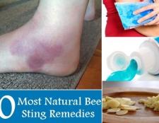 10 La plupart des remèdes à des piqûres d'abeille naturelle